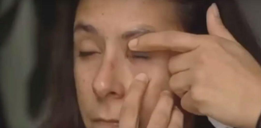 Woman glues eye shut