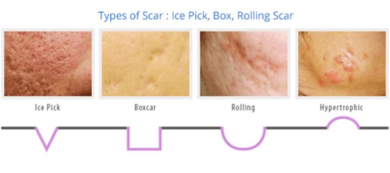 Fresh Skin Treatment Centre Booragoon