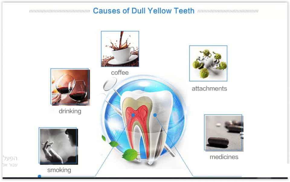 משהו רציני קרסט - מדבקות הלבנת השיניים הטובות בעולם Crest Professional CD-19