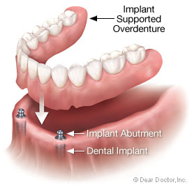 Dental implant supported overdenture.