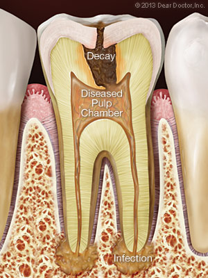 A StepByStep Guide To Root Canal Treatment