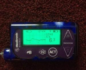 insuliinipumppu