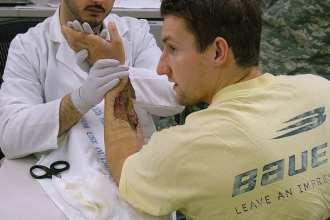 Skin-Graft Surgery