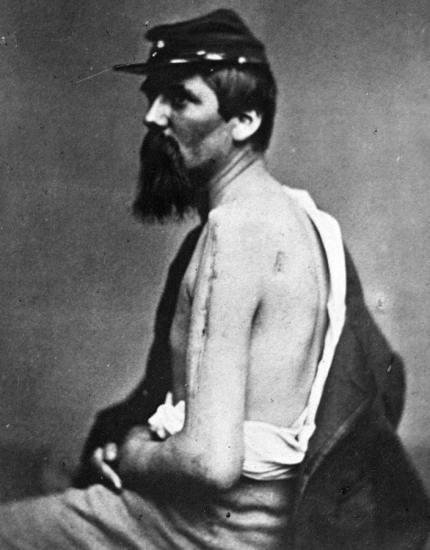 civil-war-wound