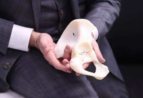 Dr. Jose Morey, a Hampton VAMC Radiologist, 3-D-printed model of a comminuted acetabular fracture. These models are used to educate patients, explain aspects of their care, and provide members of the health care team with additional information in the form of a 'haptic' model. Veterans Affairs image.