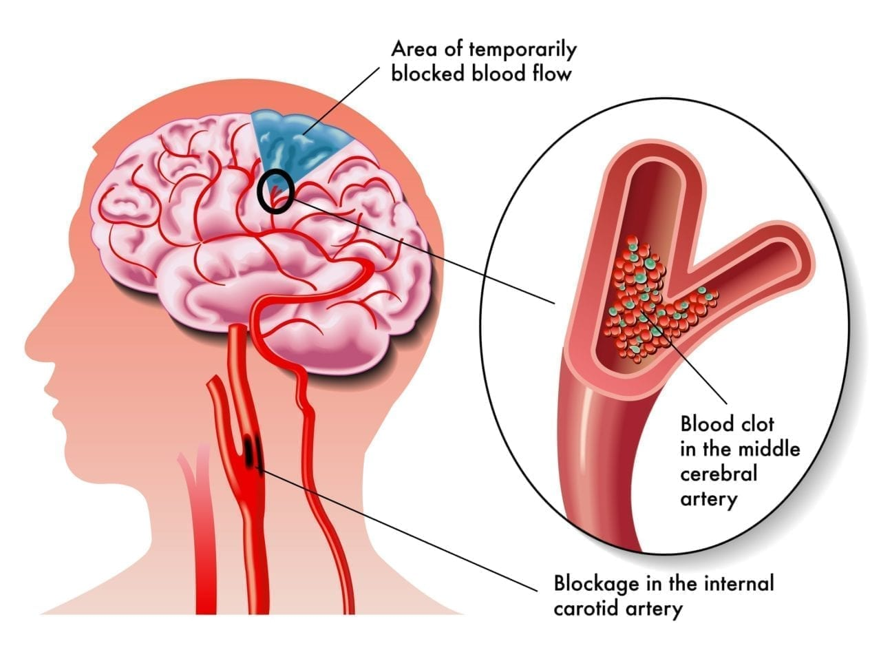"""Transient ischemic attack, sometimes called a """"minor stroke"""", occurs when a temporary blockage of blood flow to the brain causes neurological symptoms such as slurred speech or paralysis. The VA's PREVENT program aims to provide VA facilities and health care providers with the resources and information necessary to ensure veterans receive the best possible treatment for TIA."""