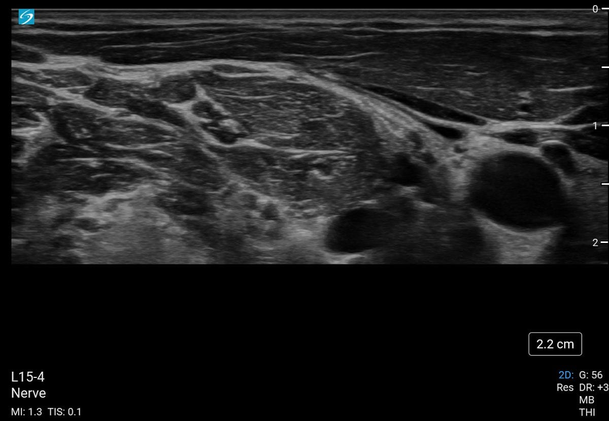Interscalene Nerve, scanned with the L15-4 transducer on Sonosite PX. (Image Source: FUJIFILM Sonosite, Inc.)