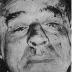 Marks on Robert Boulin's face