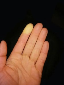 A minor Raynaud's attack.