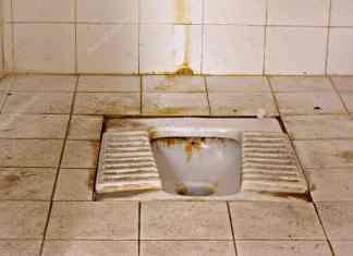 Sararmış tuvalet taşı nasıl temizlenir