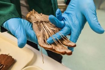 DEL CINE AL HOSPITAL Anatomía: primer examen de la carrera de Medicina.