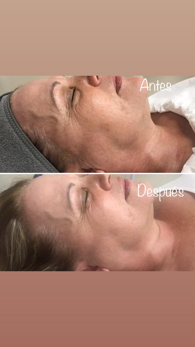 tratamiento oxigenante y efecto flash