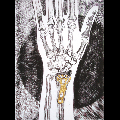 Wrist, 2014 Drypoint Etching with Gold leaf