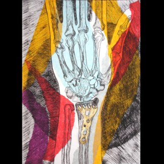Wrist V, 2014 Drypoint Etching on Collage with Gold leaf