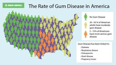 UnitedStates_Gum Disease