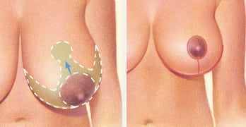 breast reduction albany ny