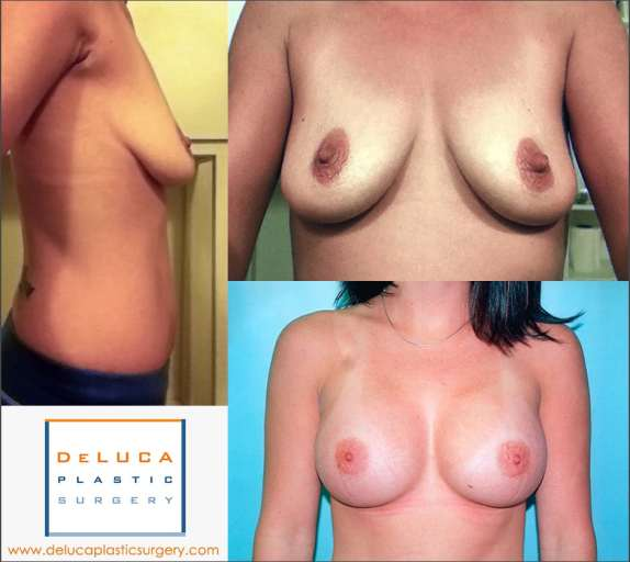 Perfect Breast Augmentation Example Before & After Photo