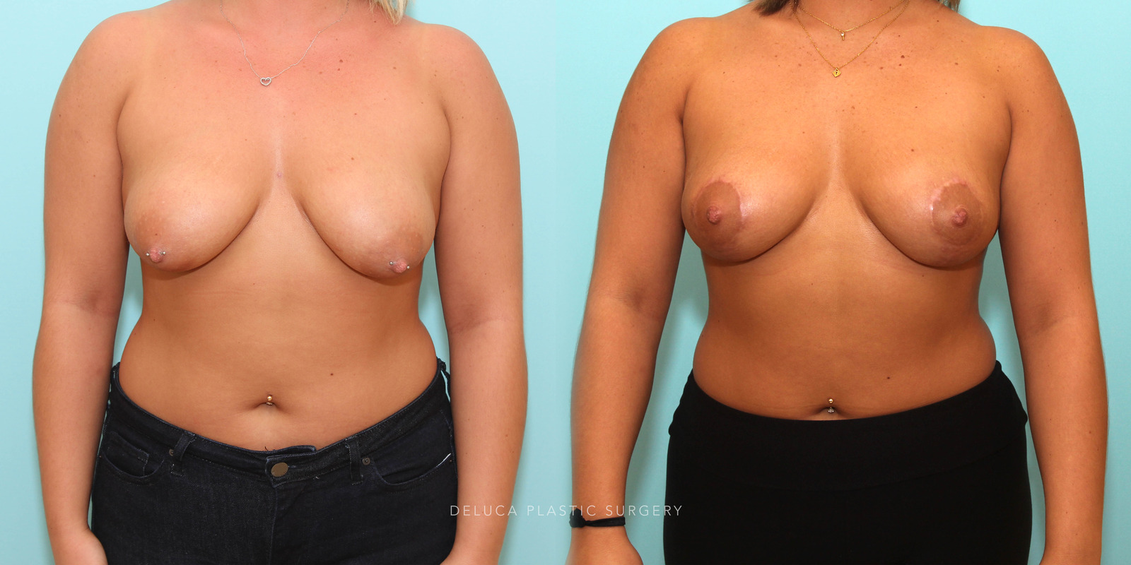 20 Year Old Circumvertical (Lollipop) Breast Lift