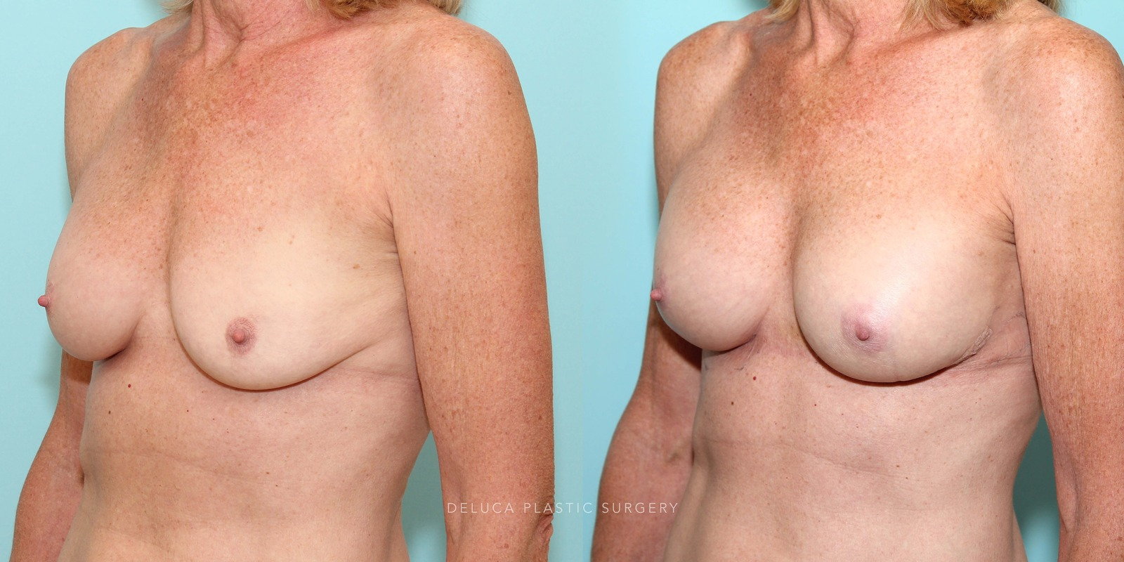 61 Year Old Secondary Asymmetric Breast Augmentation Silicone Implants