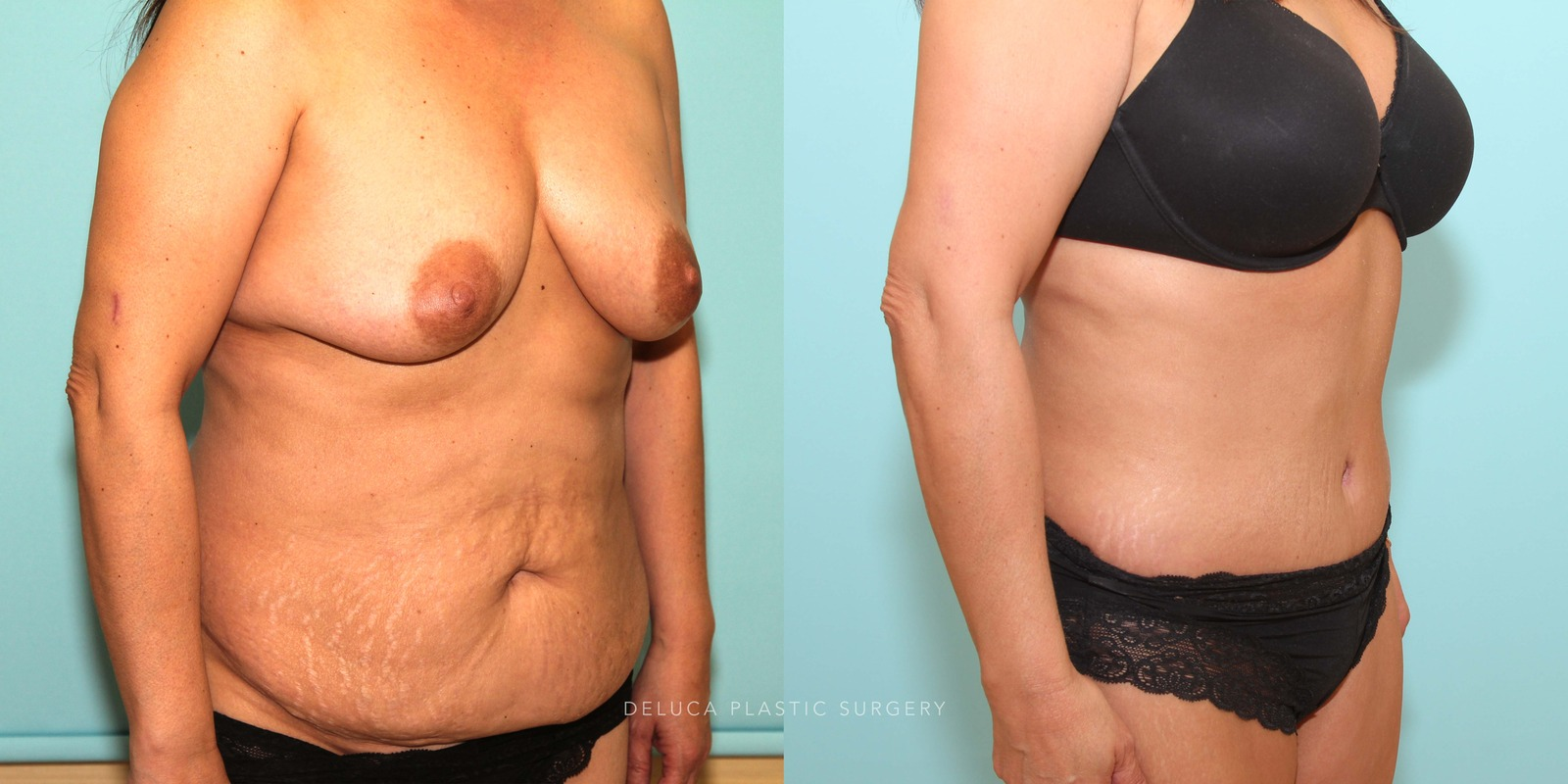 48 year old Tummy Tuck (Abdominoplasty)