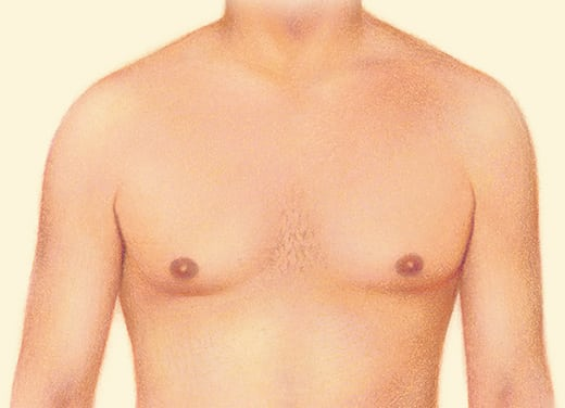 After gynecomastia surgery example