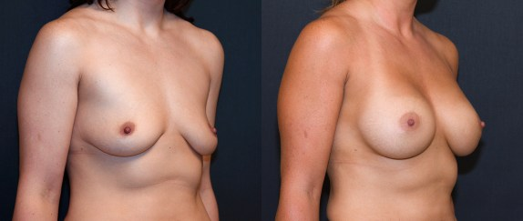 albany-breast-implants-c-cup-d-cup-before-after-3month-2a