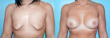 Before & After Tubular Breast Correction (Case 1a) - DeLuca Plastic Surgery