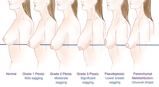 Diagram of breast ptosis (drooping/sagging) degrees/stages