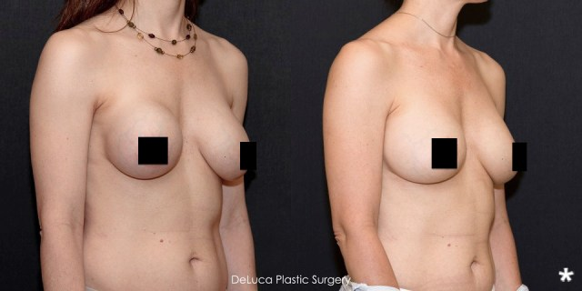 Breast Implants Capsulotomy Before And After Photo - DeLuca Plastic Surgery