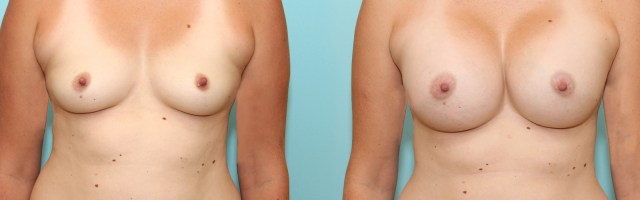 28 year old Breast Augmentation with 700ml High Profile Silicone Implants