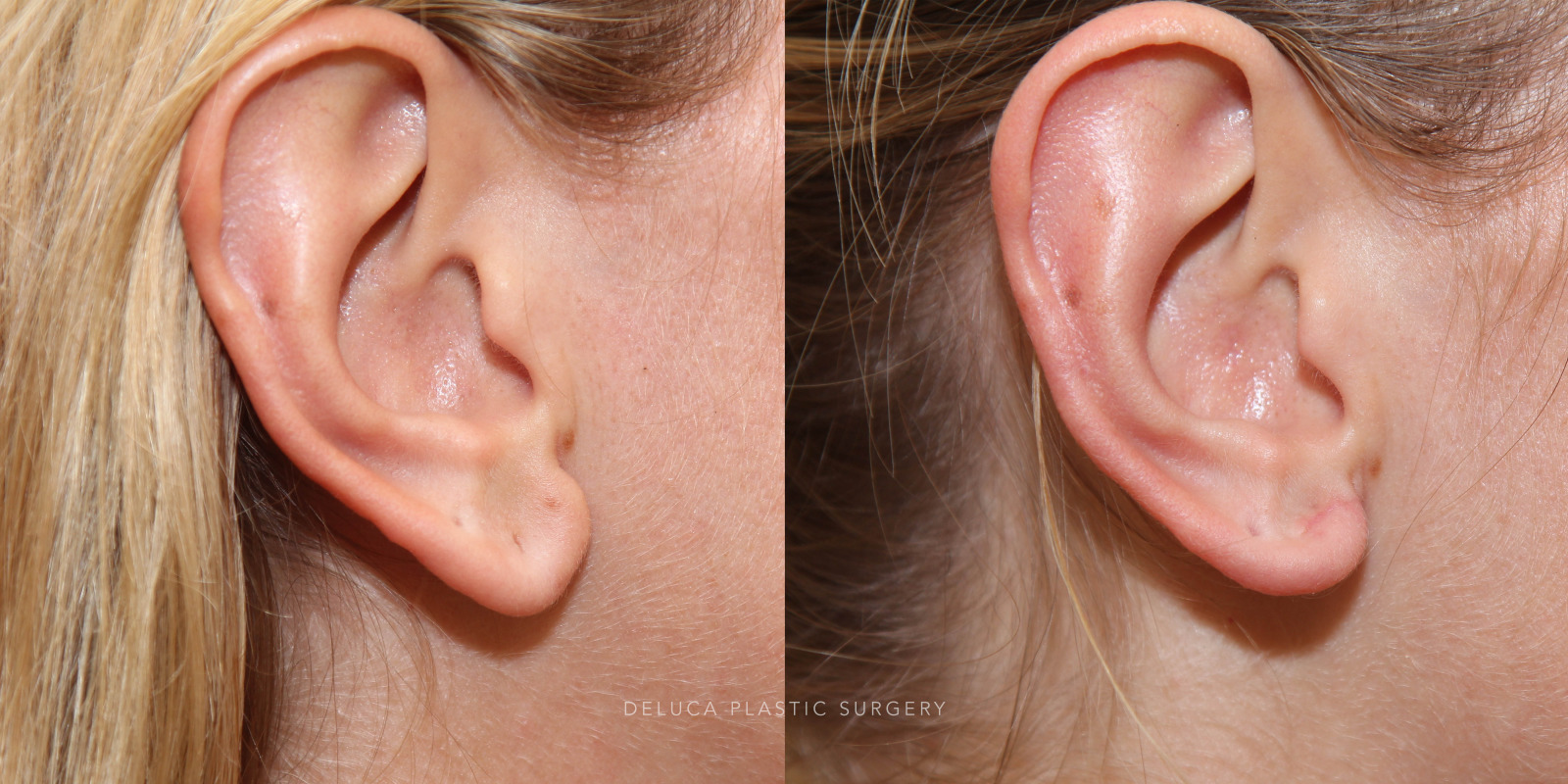 28 year old Earlobe Reduction