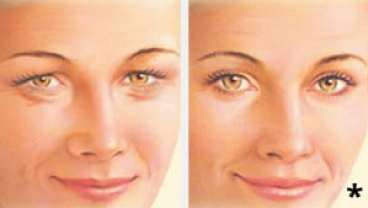 Eyelid Lift - Before & After Artist Example - eyelid surgery albany ny