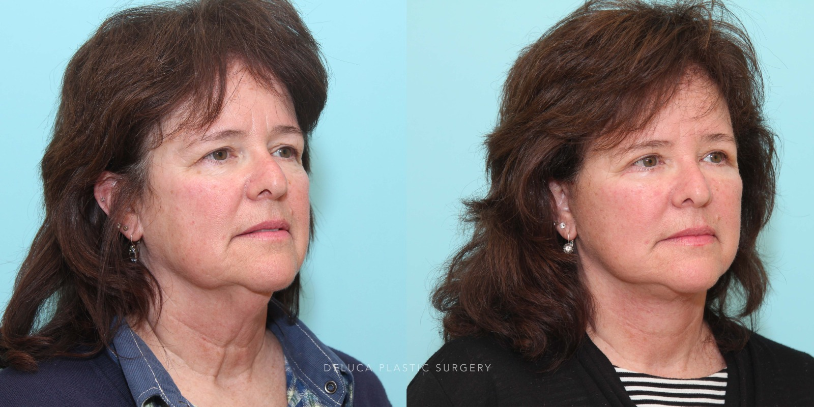 57 year old Face and Neck Lift and Upper and Lower Eyelid Blepharoplasty