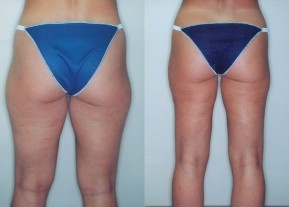 """Before & after liposuction of the hips and thighs to remove """"saddlebags"""" (2200cc infused and 2100cc removed) - by Dr. DeLuca"""