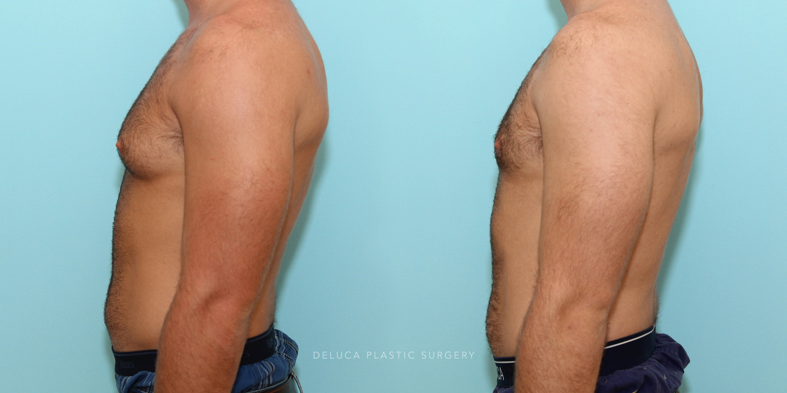 21 year old Correction of Gynecomastia Using Liposuction and Subcutaneous Mastectomy