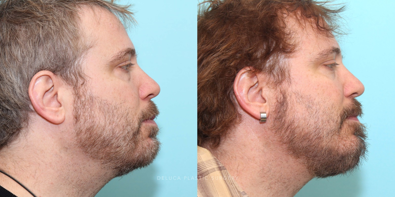 51 year old Lower Eyelid Blepharoplasty with Fat Redraping