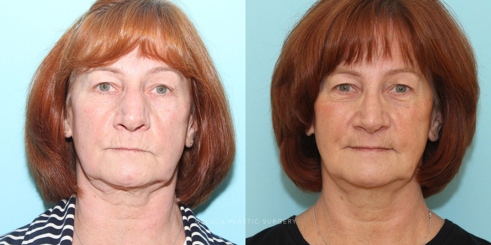 63 year old Septoplasty and Cosmetic Rhinoplasty