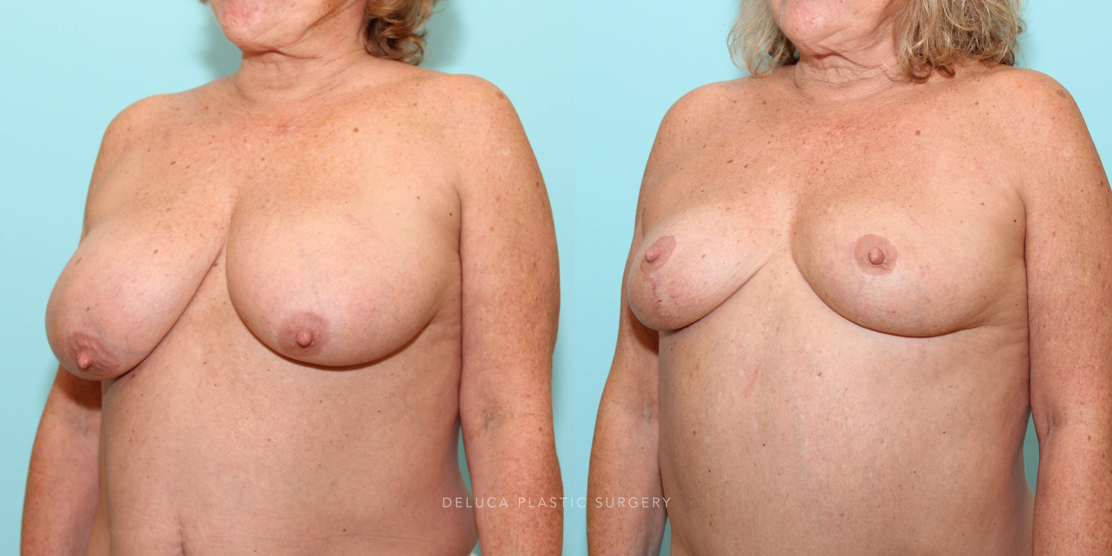 62 year old Superior Pedicle, Wise Pattern Breast Reduction