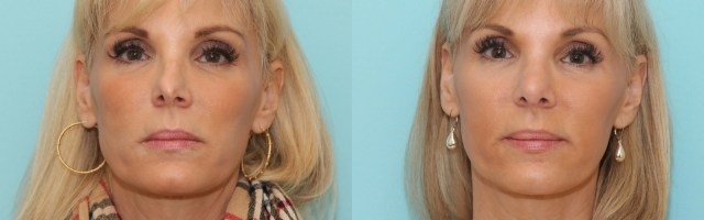 51 year old Revision Rhinoplasty Using Rib Grafting