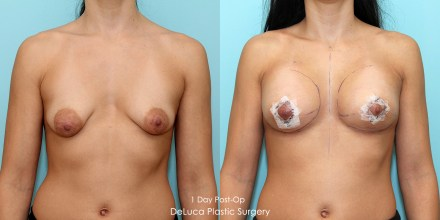 Tubular breast augmentation correction, before & after 1