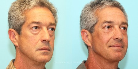 upper+and+lower+eyelid+surgery+with+fat+re-draping+and+facial+implants+for+mid-face+hollowing_4