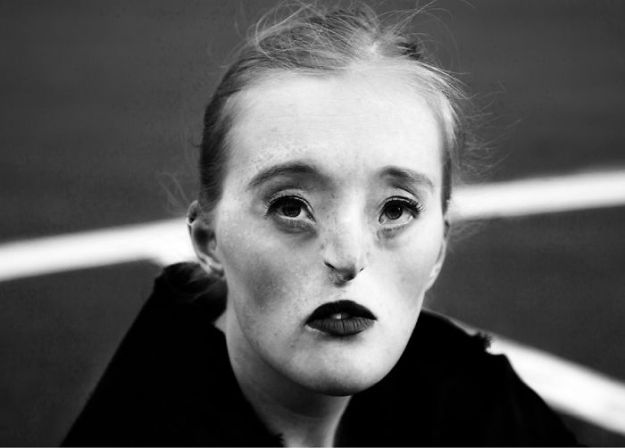5ae9636204df4-Sensual-Trueness-7-5a84477e6c4eb__700 26-Year-Old Born With Extremely Rare Facial Condition Is Now A Model, And She's Breaking Beauty Standards Inspiration Photography Random