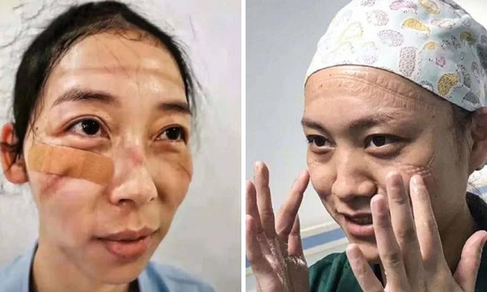 5e41144d2e120 chinese nurses face masks corona virus 5e3d37a86744d  700 - Coronavírus: Enfermeiras chinesas chamadas de heroínas ficam com feridas pelas máscaras