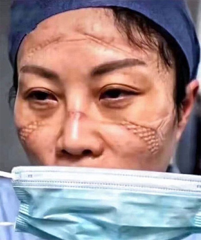 5e41144e3547c chinese nurses face masks corona virus 2 5e3d2fc2cf77d  700 - Coronavírus: Enfermeiras chinesas chamadas de heroínas ficam com feridas pelas máscaras