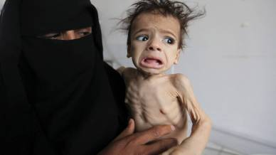 Image result for yemen famine