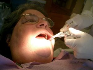 old lady having tooth removal
