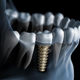Implanty zębowe Tarnów