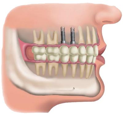 implantes dentales miedo