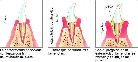 periodontal_2