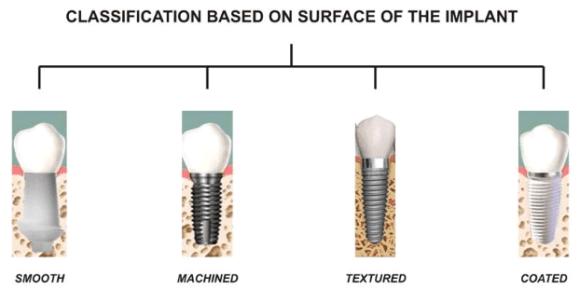 Tipe Implan Gigi- Global Estetik Dental Care